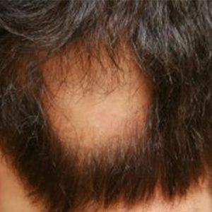 alopecia-areata-