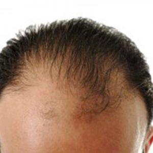 alopecia_androgenetica